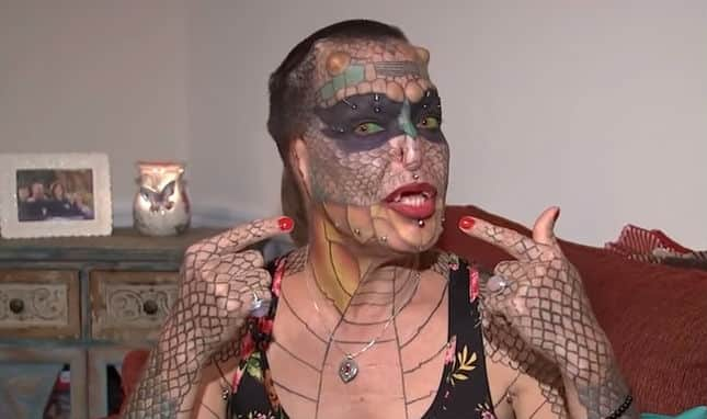 Transsexual tongue surgery