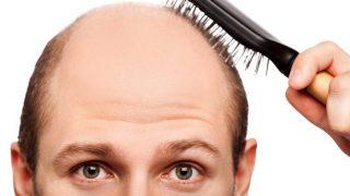 Baldness Home Remedies: गंजेपन की समस्या से हैं परेशान तो अपनाएं ये उपाय, कुछ ही दिनों में दिखने लगेगा फर्क