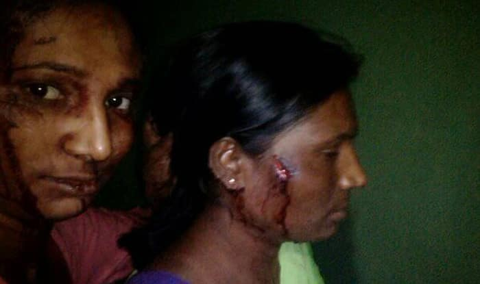 Mahrashtra girl fights off tiger with a stick
