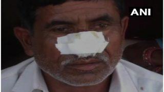 इज्जत का हवाला देकर भाई को शराब के लिए नहीं दिए रुपए, गुस्साए भाई ने काट ली नाक