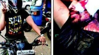 Mumbai Biker brutally attacked by drunken girl and her two friends