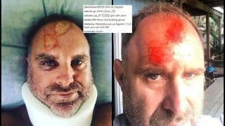 Former Australian Matthew Hayden Shares Pictures of His Fracture, Injury And Bruises -- PICS