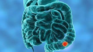Here is What You Need to Know About Colorectal Cancer