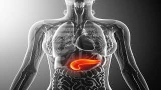 Pancreatic Cancer: High Body Mass Index And Other Risk Factors