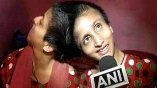 Patna's Conjoined Twins Now Have Separate Voting Rights Unlike in 2015