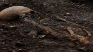 Skeletons in Muzaffarpur Hospital: 3-Member Committee Begins Probe