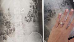OMG! चोरों के डर से सपने में सगाई की अंगूठी निगल गई महिला, डॉक्टर्स ने उठाया ये कदम..