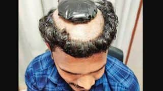 Man Caught Smuggling 1 Kg Gold Under A Wig At Cochin Airport