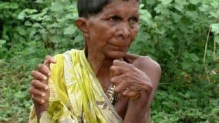 Odisha Woman Born With 20 Toes and 12 Fingers Branded a Witch, Forced to Stay Indoors
