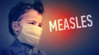 Suffering From Measles? Go Natural to Get Rid of The Disease