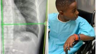 7-Year-Old Georgia Boy Ends Up in Hospital After He Swallows An AirPod He Got For Christmas