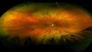 Diabetic Retinopathy: These Herbs Can Heal The Condition