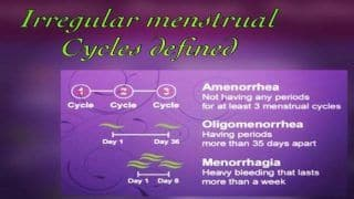 Irregular Menstrual Cycle: These Home Remedies Actually Work