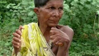 63-Year-Old Odisha Woman With 19 Toes & 12 Fingers Sets New Guinness World Record