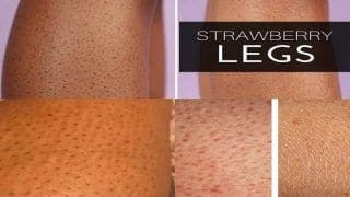 Here is How to Bid Farewell to Strawberry Legs
