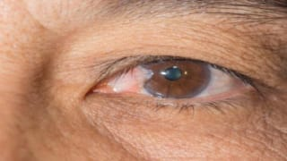 Early Signs of Glaucoma Progression to Blindness Can be Spotted by AI