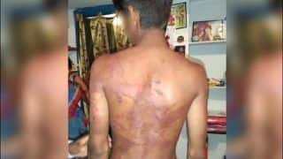 Telangana Men Brutally Assault And Force 18-Year-Old Dalit Boy to Drink Urine For 'Daring' to Date Girl From Their Community, Arrested