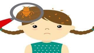 Hair-Care Tips: How to Get Rid of Head Lice Using Olive Oil