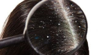 Here is How to Use Your Hair Oil to Bid Adieu to Stubborn Dandruff
