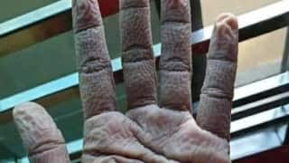 IAS Officer Shares Picture of a Doctor's Wrinkled Hands After Wearing Gloves for 10 Hours, See Viral Pic