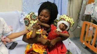Rare Surgery: Twin Sisters, Conjoined at The Skull, Successfully Separated in 18-Hour Operation
