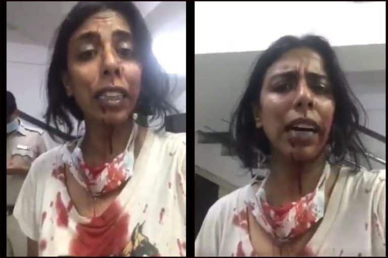Video of Blood-Soaked NGO Volunteer Goes Viral After Others From 'Neighbourhood Woof' Brutally Assaulted by Locals in Delhi