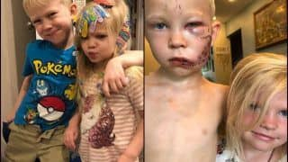 'I Know a Superhero When I See One': Former Catwoman And The Hulk Laud Six-Year-Old For Saving Little Sister From Dog Attack