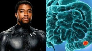 All About Colon Cancer: Symptoms And Treatment of Disease That Took Black Panther Aka Chadwick Boseman's Life