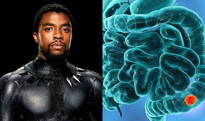 All About Colon Cancer Symptoms And Treatment Of Disease That Took Black Panther Aka Chadwick Boseman S