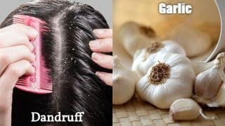 Dandruff And Garlic: What is The Link?