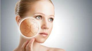 Try These Effective DIY Remedies to Deal With Dry Skin