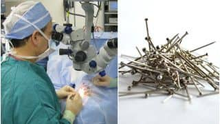 Bizarre! Doctors Find Sewing Needles, Nails & Screwdriver in UP Teen's Stomach, Removed Through Surgery