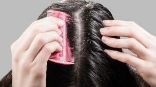 Tips to Get Rid of Dandruff Before it Starts Causing Extreme Hair Loss