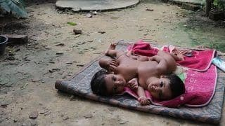 Remember Kushinagar's Conjoined Twins? They Have Finally Been Separated After 9-Hour-Surgery at Lucknow's KGMU
