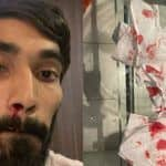 Kidambi Srikanth Left With Bloodied Nose After Multiple COVID-19 Tests During Thailand Open