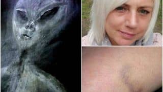Woman Claims She Has Been Kidnapped by Aliens 52 Times in a UFO, Says Marks on Her Body Prove It!