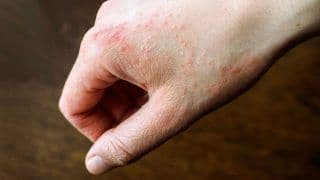 Covid Precaution Causing Dermatitis to 2/3rd Population, Find Researchers   Here's Why