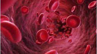 World Blood Cancer Day 2021 Home Remedies: ब्लड कैंसर जैसी जानलेवा बीमारी से बचना चाहते हैं तो अपनाएं ये घरेलू उपाय