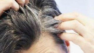Hair Care Tips: समय से पहले ही सफेद होने लगे हैं बाल? घबराएं नहीं, अपनाएं ये तरीके