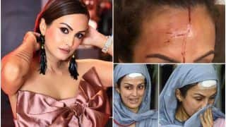 Nisha Rawal's Friend Shares Her Disturbing Pictures With Blood-Soaked Face, Calls Karan Mehra a Demon