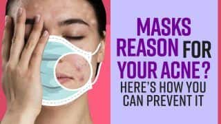 Maskne: Your Masks Can Also Be A Reason to Your Acne, Here's How You Can Prevent It
