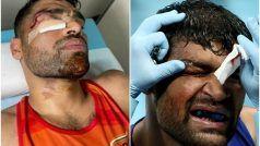 Tokyo Olympics 2020: चेहरे पर टांके लगावकर उतरे Satish Kumar, देश के लिए सेना के मुक्केबाज ने खुद को दाव पर लगाया