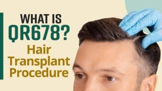 Hair Treatment : What Is QR 678 Hair Transplant ? Here Is All You Need To Know